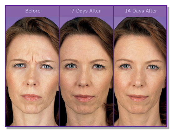 female_botox_before_after_7